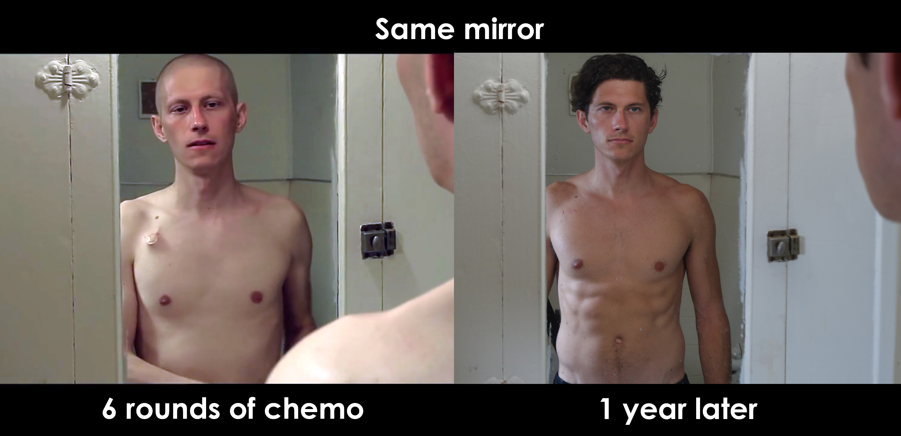 Exercise and Life After Chemo